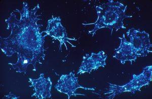 Krebs Krebszellen töten sterben Curcuma Curcumin Kurkuma Kurkumin